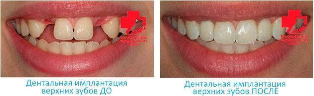 dental-implant